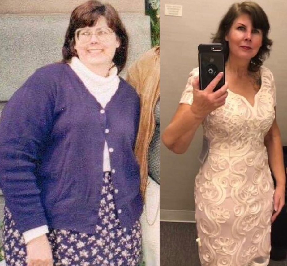 Jacque, before and after 80 lbs weight loss